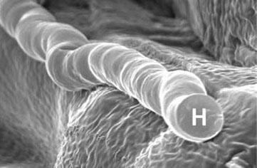 micrograph