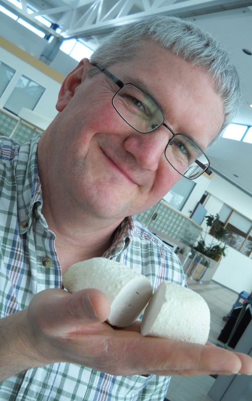 Andrew Moore holds a bladder stone.