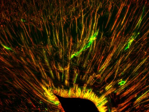 Stem cells in the gecko medial cortex. Looks like thin strings radiating out of central dark point