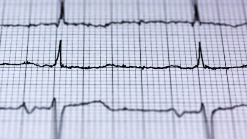 This photo shows a cardiac rhythm on a heart monitor