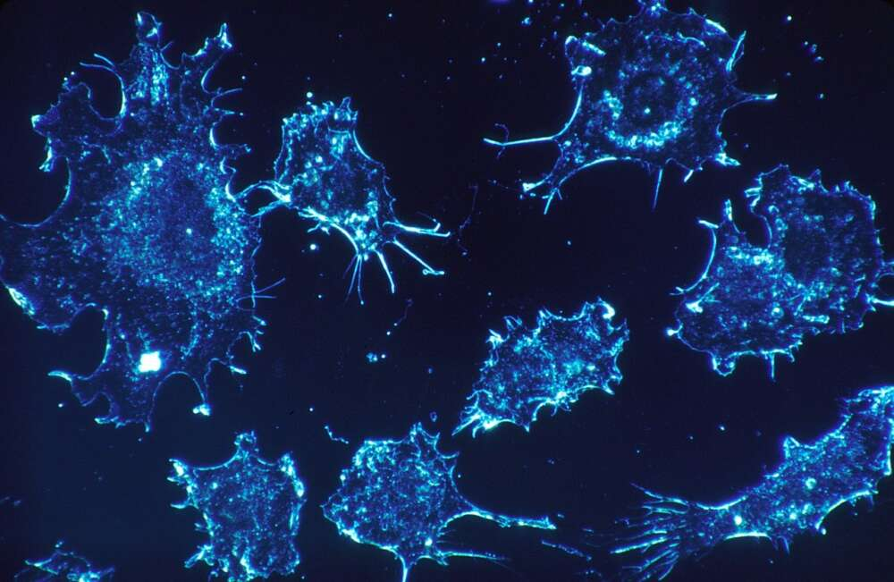 A blue illustration of cancer cells