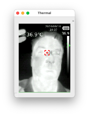 image of a person's face through the thermal carmera in black and white